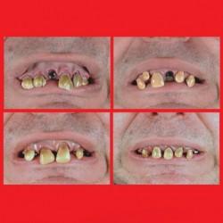 Dentiera Horror